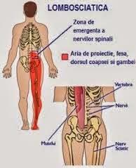dureri articulare sau nervoase sciatice