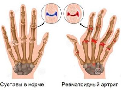 leucocitoză cu inflamația articulațiilor)