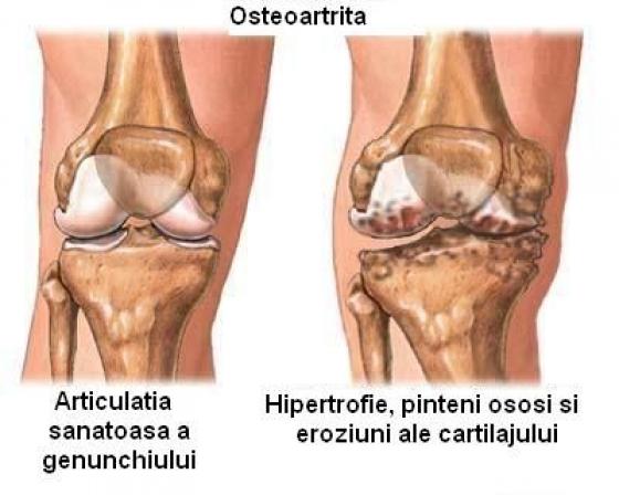 cum să preveniți artroza genunchiului)
