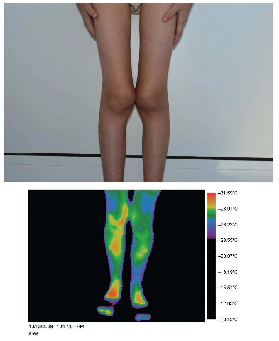 ciorapi de durere articulară