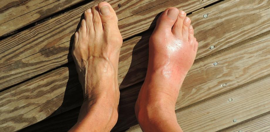 cum să tratezi durerea gleznei piciorului