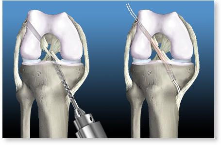 cum se tratează ligamentele rupte în articulația genunchiului)