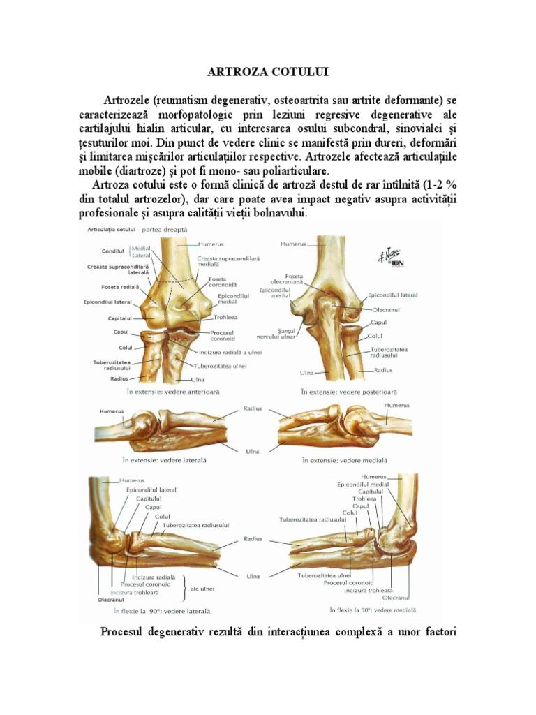 Diagnosticul artrozei cotului, Artroza deformantă a articulației cotului drept de 1 grad