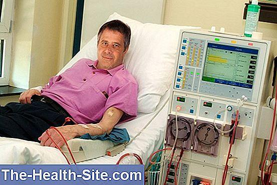 articulațiile rănite la dializă