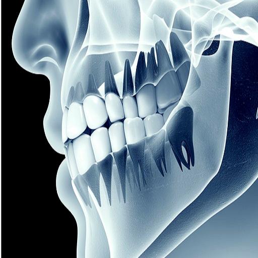 boli ale țesuturilor moi creme care conțin glucozamină și condroitină