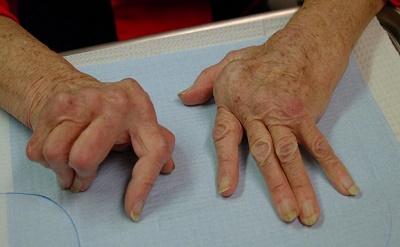 polioxididiu pentru bolile articulare