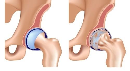 chiropractorul tratează artroza