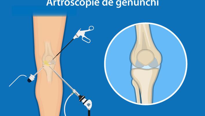 Exerciții după rezecția artroscopică a genunchiului la menisc - Rănire