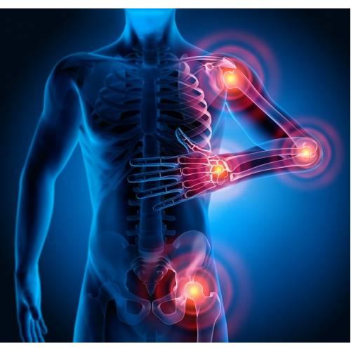 inflamație articulară în diferite locuri