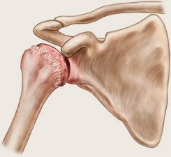 artroza codului articulației umărului)