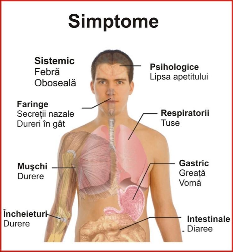 stare generală de rău musculară dureri articulare)