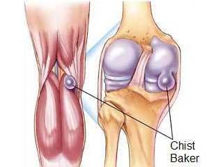 inflamația genunchiului artroza. diagnosticul și tratamentul artrozei