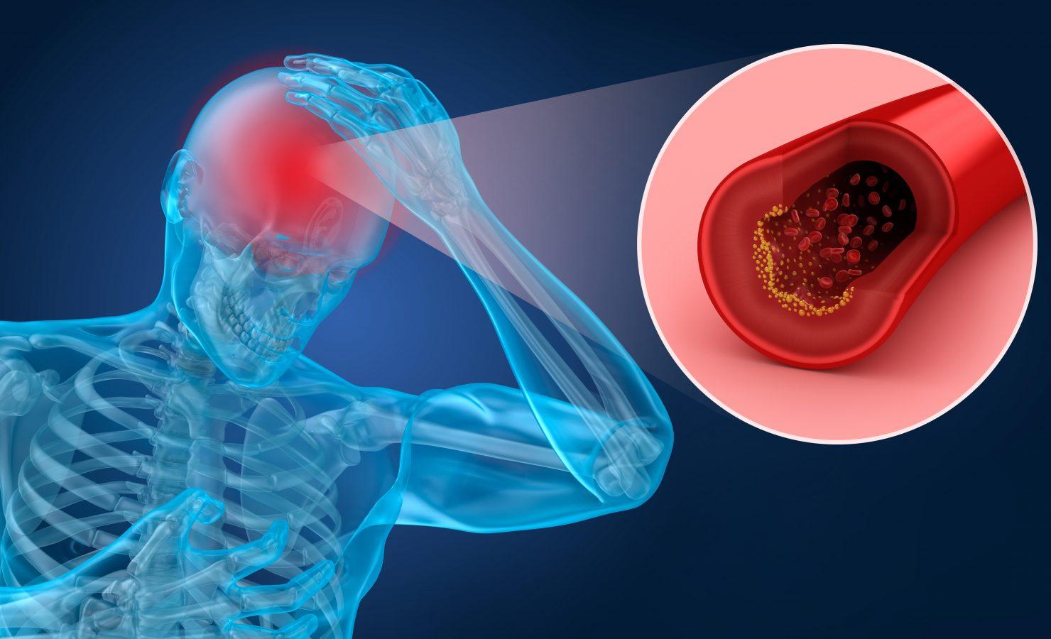 tratament articular după un accident vascular cerebral