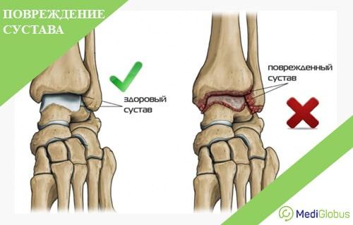 как вылечить остеоартроз лучезапястного сустава durere la nivelul articulațiilor șoldului cu mers lung