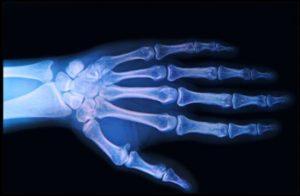 cremă pentru ligamente și articulații