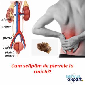 durere în articulațiile rinichiului uretrei)