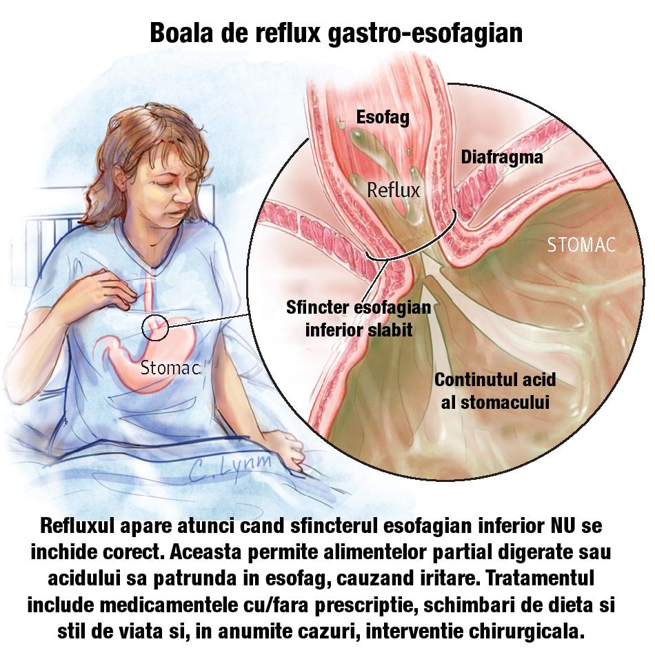 dureri la nivelul articulațiilor și rănit