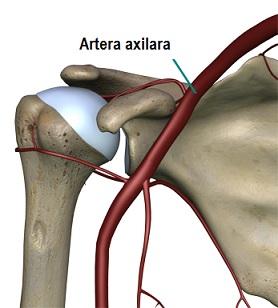 tratamentul osteoartrozei deformante a preparatelor articulațiilor umărului)