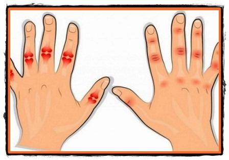 boala artrozei articulare a degetelor