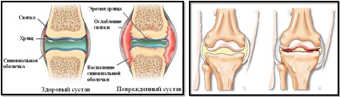 cum să învingi artroza genunchiului