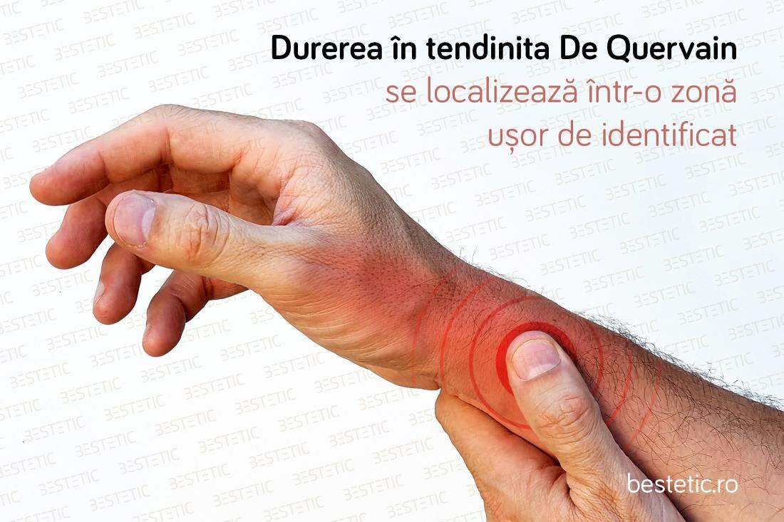 Durerea de mână și de încheietura mâinii