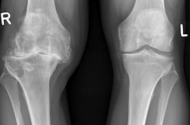 4 stadiu de artroză a genunchiului)