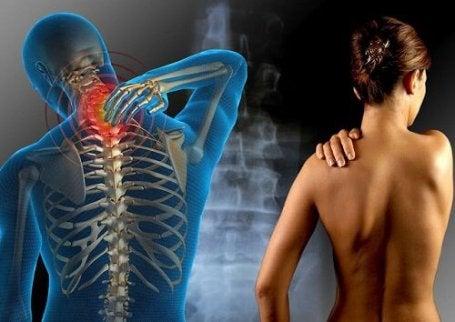 care au dureri articulare severe