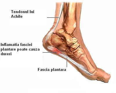 tratamentul cu artroză a rumalonului ce unguente sunt eficiente pentru articulații