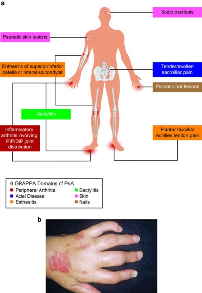 artrita patelă)