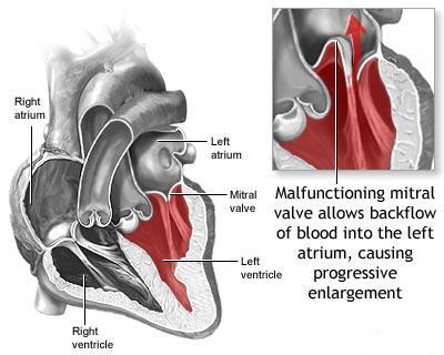 blocaj cu artroza șoldului push-up pentru artroza articulației umărului