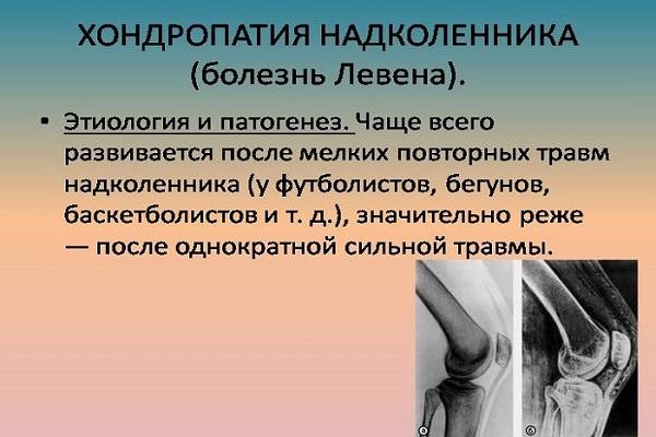tratamentul artrozei deformante 3-4 grade)