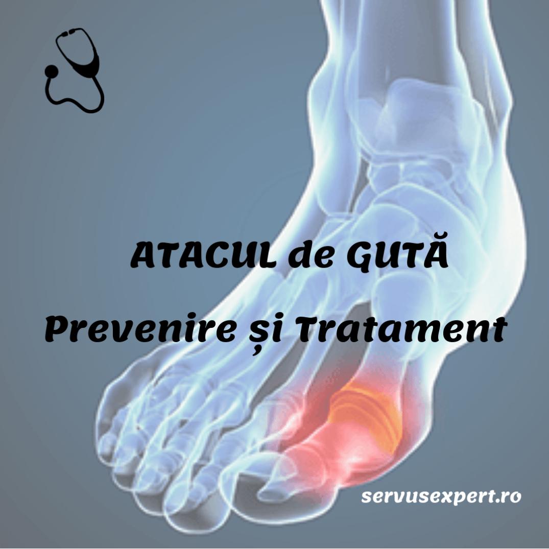 tromboză sau artrită a articulațiilor unui picior