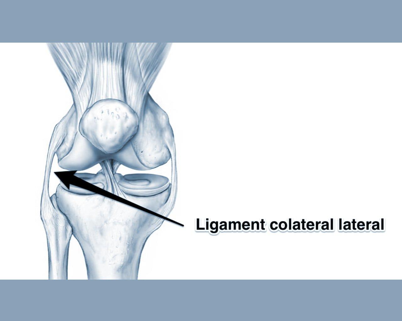 reconstrucția ligamentului lateral al genunchiului)