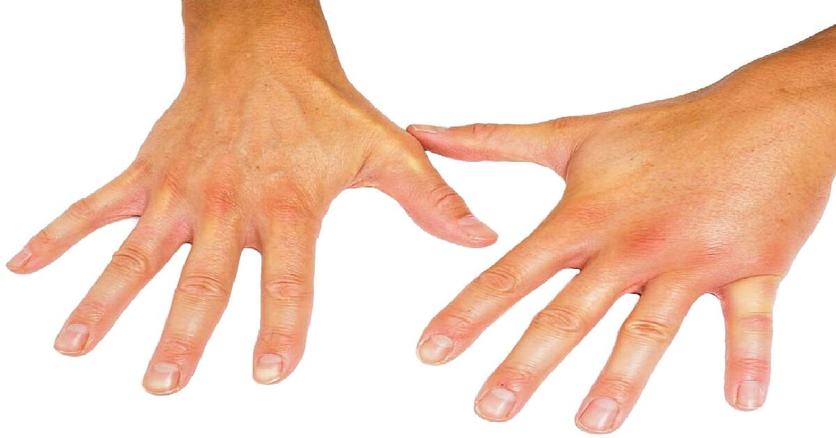 tratament de îngroșare a articulațiilor degetelor