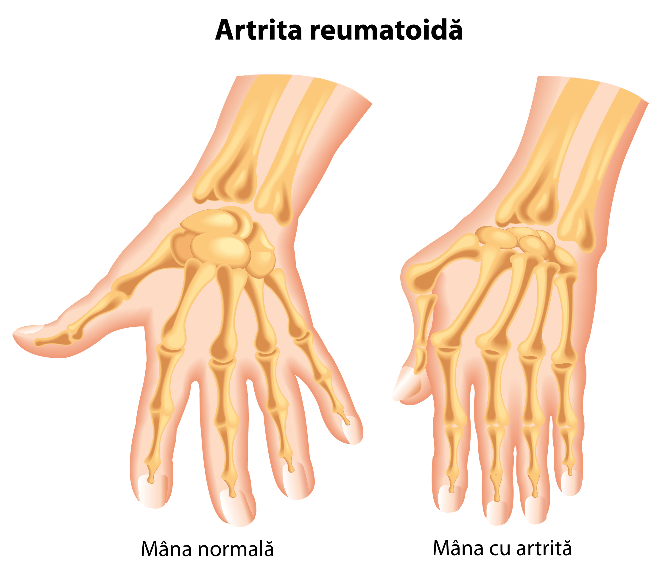 Poliartrita reumatoida: fara tratament, degetele mainilor se deformeaza semnificativ!