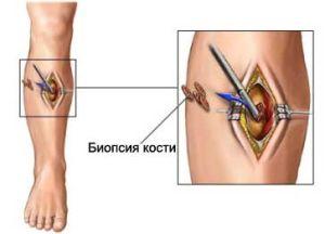 6 simptome ale sarcomului osteogen al femurului. Semne precoce și prognostic