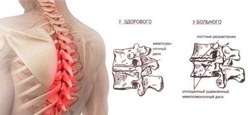 medicamente osteocondroza