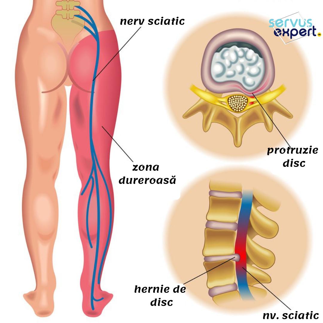 inflamația nervului genunchiului)