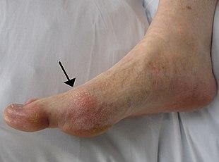 articulații artrite gouty gouty