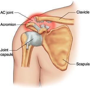 Pareri pacienti - Dr. Ion Bogdan Codorean Recenzii ale tratamentului rupturii ligamentului umărului