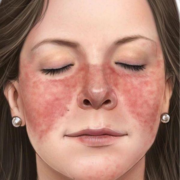 dureri articulare cu lupus eritematos