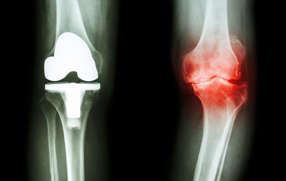 tratament nechirurgical al genunchiului)