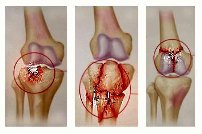 Cum se trateaza o fractura de tibie de condyle - Gută