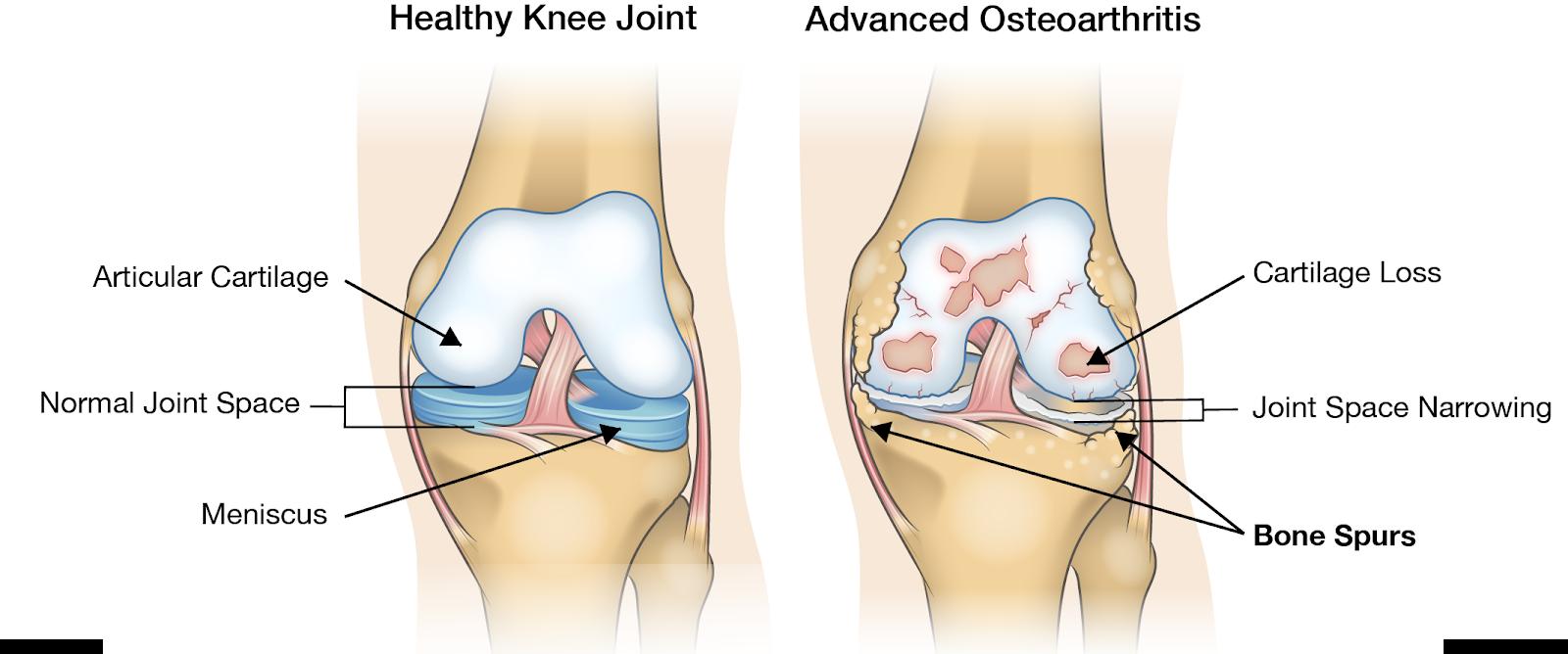 unde se tratează gonartroza articulației genunchiului
