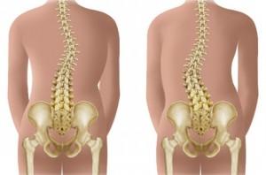 Tratamentul Leonid Bulanov al coloanei vertebrale și articulațiilor)