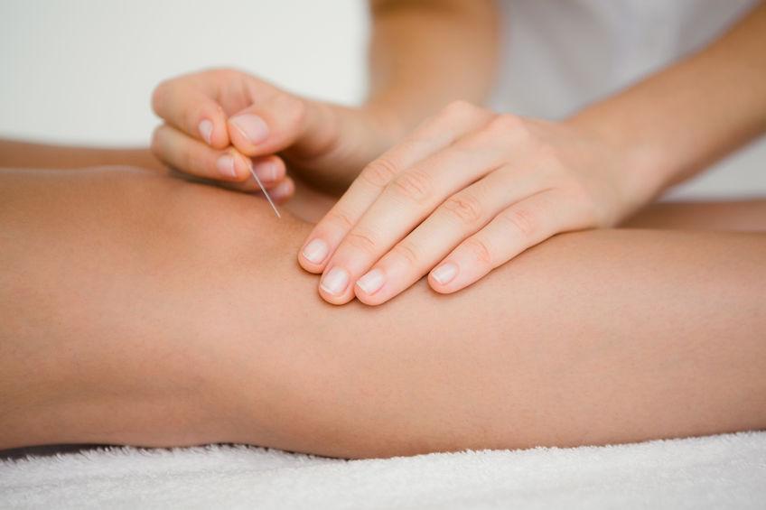 tratament de acupunctură pentru artroză