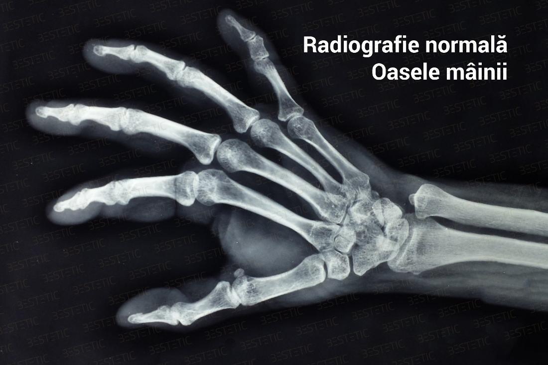 artrita prin articulațiile mâinii)