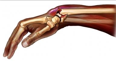 durere migratorie în toate articulațiile unguent antiinflamator pentru mușchi și articulații