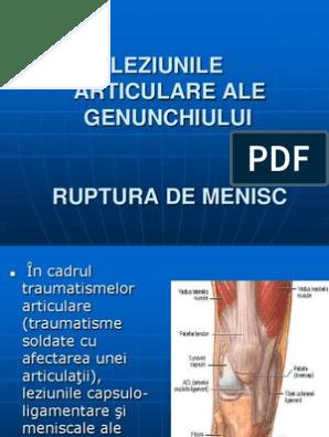 Leziuni articulare ale membrului inferior.