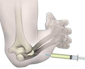 cum să amelioreze durerea cu gonartroza articulației genunchiului